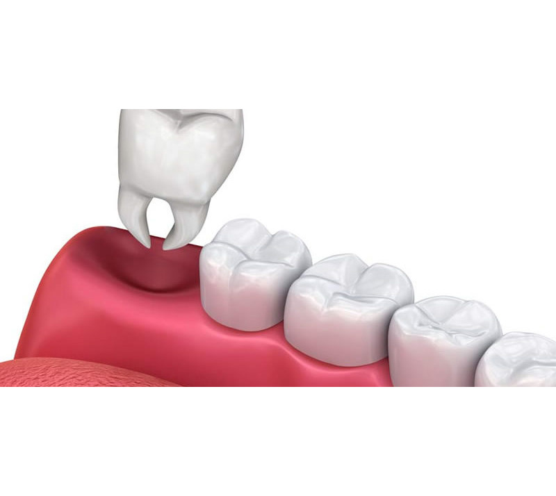 tooth extractions in thunder bay